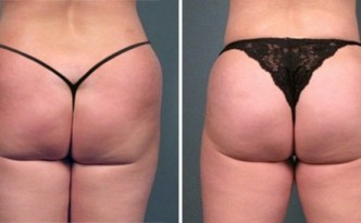 buttocks enhancement